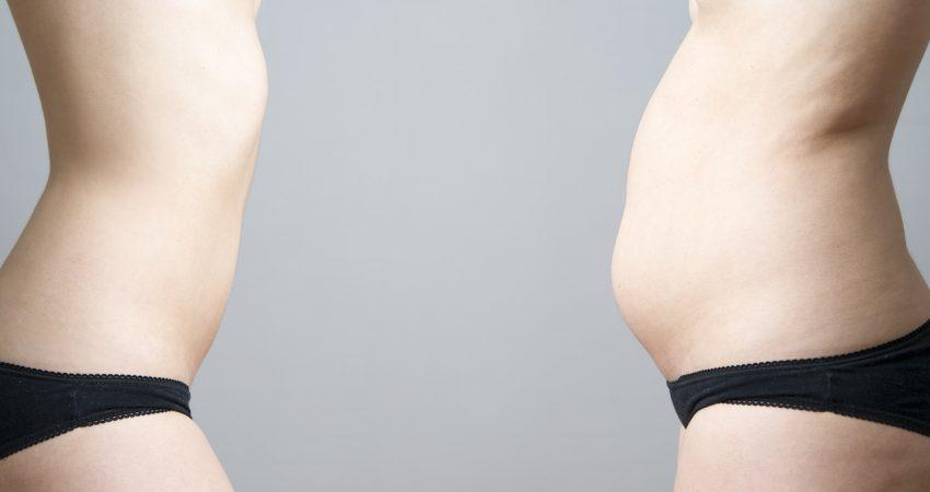 Abdominoplastia ou Mini abdominoplastia