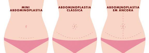 Cicatriz de Abdominoplastia